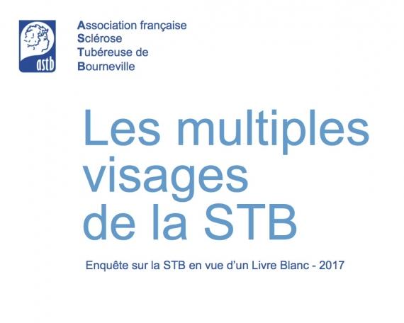 Livre Blanc – Les multiples visage de la STB